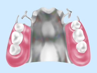 金属床入れ歯(自費診療)