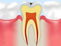 C0(初期の虫歯)