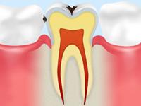 C1(エナメル質の虫歯)
