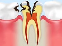 C3(神経まで進んだ虫歯)