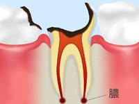 C4(歯根まで進んだ虫歯)